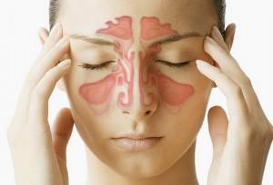sinusitis1(1)