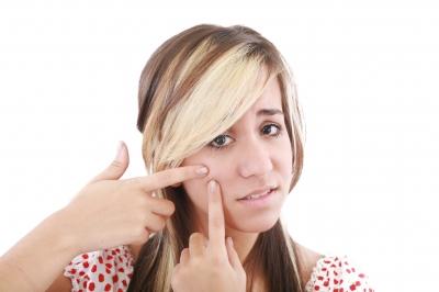 Una cura naturale per l'acne