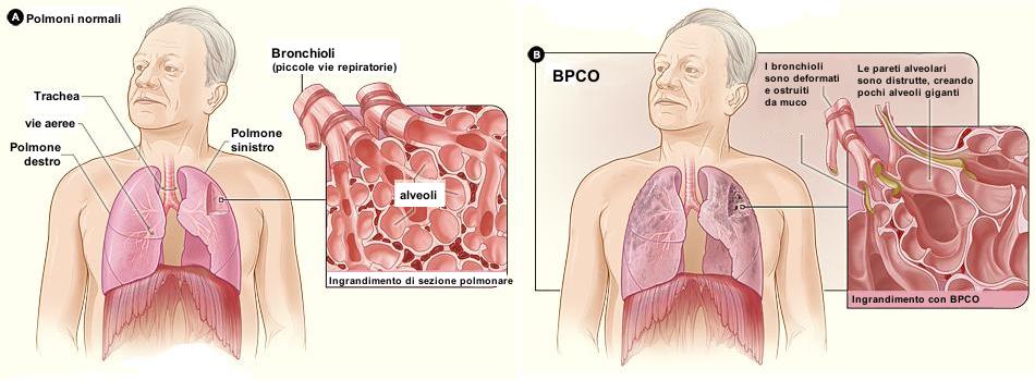 BPCO_2010Side